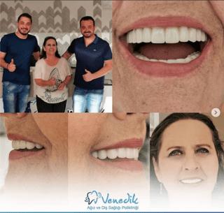 antalya konyaaltı zirkonyum diş kaplama